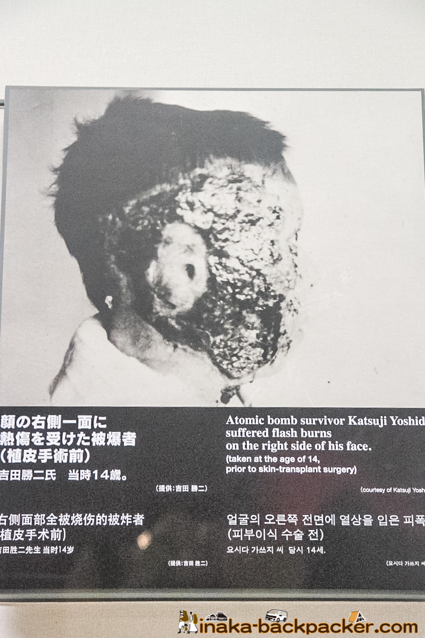 Nagasaki Atomic Bomb Museum – Atomic bomb survivor Mr. Katsuji Yoshida. His right face is all burned. His ear's skin did not recover.