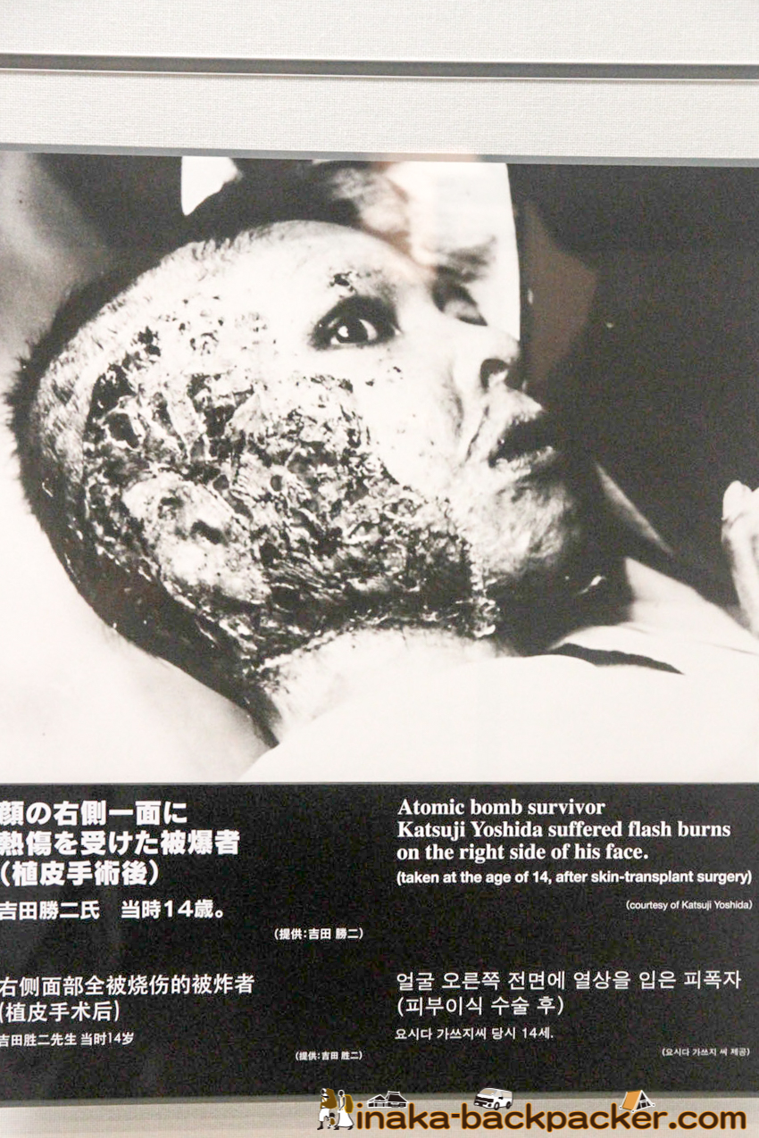 Nagasaki Atomic Bomb Museum – Mr. Katsuji Yoshida suffered burns on the right side of his face