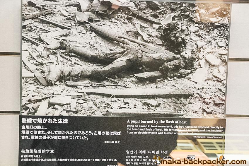 Nagasaki Atomic Bomb Museum: The charred corpse of a boy 黒焦げの少年 長崎原爆資料館にて