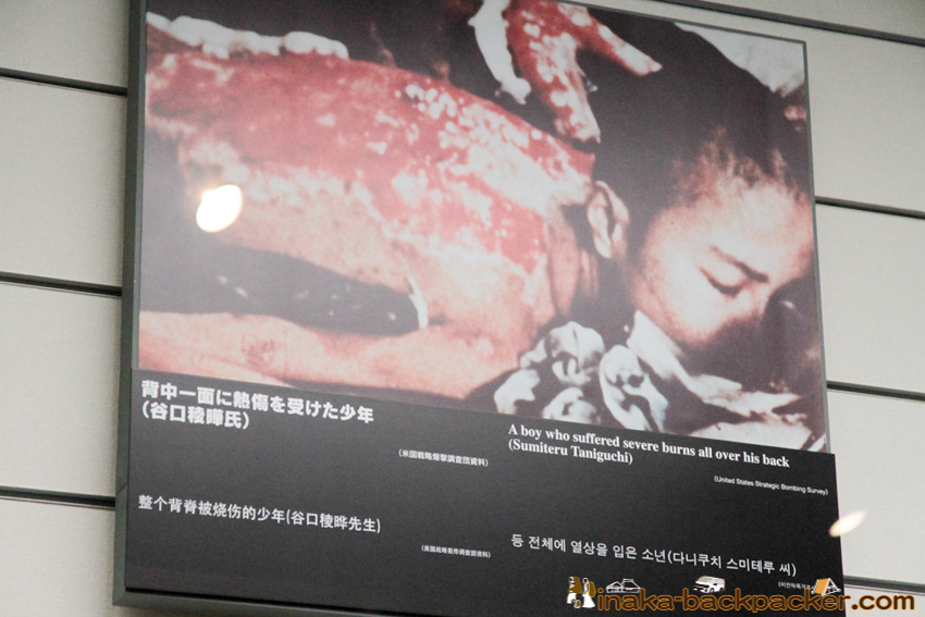 Nagasaki Atomic Bomb Museum – A boy suffering from severe burns on all over his back
