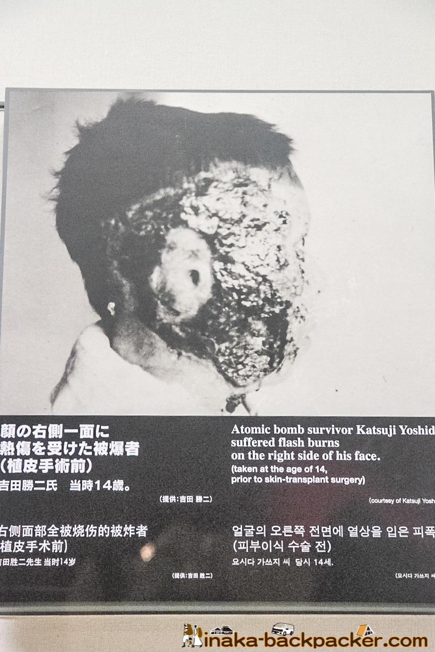 Nagasaki Atomic Bomb Museum – Atomic bomb survivor Mr. Katsuji Yoshida. His right face is all burned. His ear's skin did not recover.